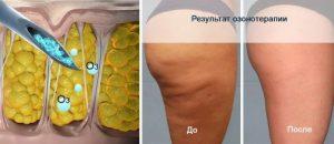 ozonetherapy, озонотерапия, фото озонотерапии, озонотерапия до после