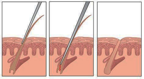 Электроэпиляция волос