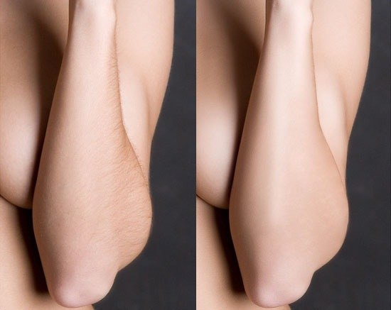 лазерная эпиляция волос Alma Soprano XL